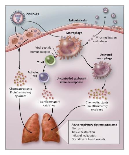 Cytokine storm of Sars-COV2
